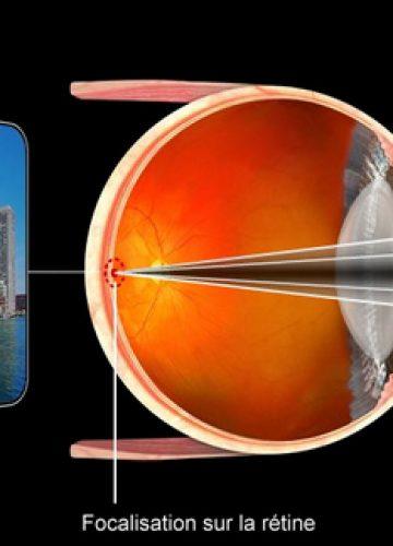 L'œil et ses défauts optiques